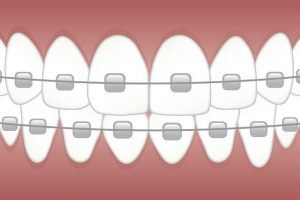 Alternativa za nevidni zobni aparat je klasični fiksni zobni aparat zvezdice